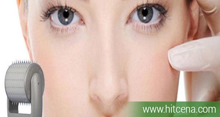 2500 rsd mezoterapija lica Aesthetic ili Ericson Dermal Micro Needling rolerima (uklanjanje bora, pega, fleka, oziljaka - Colagen Inducton Therapy) na dve lokacije