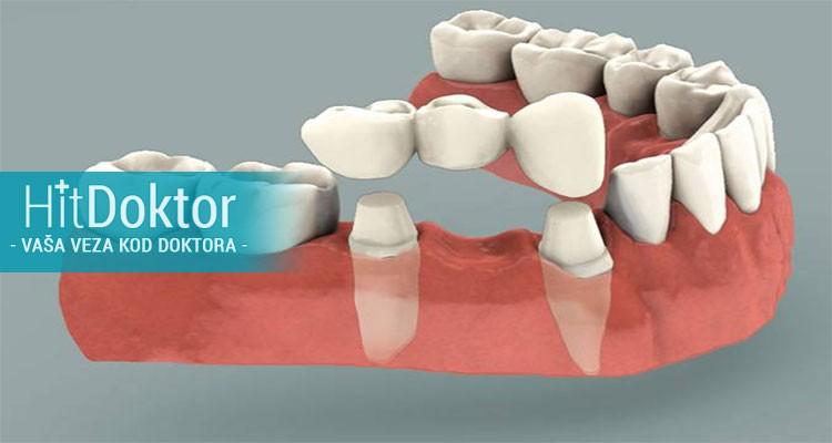 46% popusta za izradu metalokeramičke krunice + gratis čišćenje zubnog kamenca i poliranje svih zuba po hit ceni od 6999