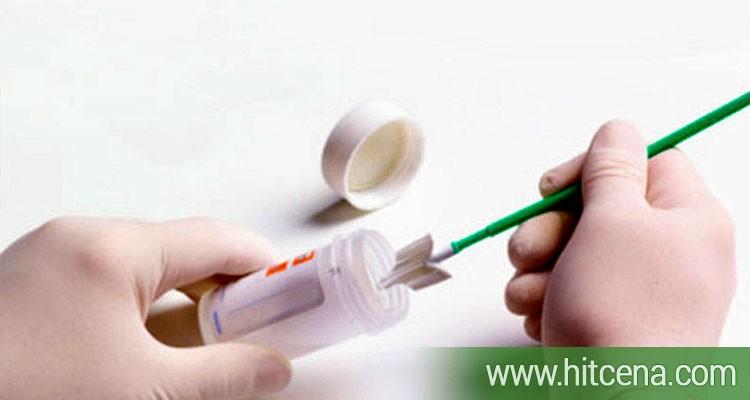 Brisevi za žene (Chlamydia, Mycoplasma, Ureaplasma i vaginalni bris) u Poliklinici Millenium Medic po hit ceni od 1500 rsd