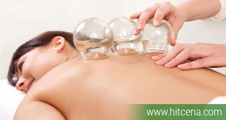 Cupping terapija (ventuza) - jedna od najstarijih metoda tradicionalne kineske medicine + masaza po izboru