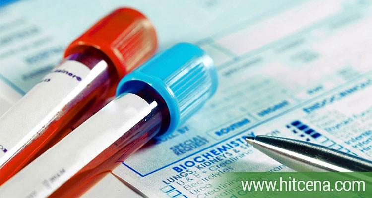 Kompletna analiza krvne slike u laboratoriji Lin Lab po hit ceni od 200 rsd