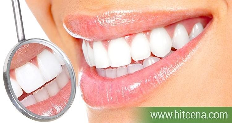 Lasersko izbeljivanje zuba - 6 tretmana u dva danu - u centru Nisa po hit ceni od 1500 rsd