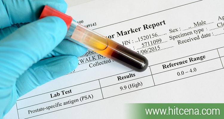 PSA tumor markeri kod muškaraca po hit ceni od 600 rsd
