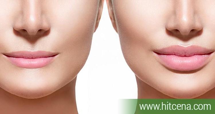 Popunjavanje usana ili bora hijaiuronom u ordinaciji po HIT ceni  od 10000 rsd
