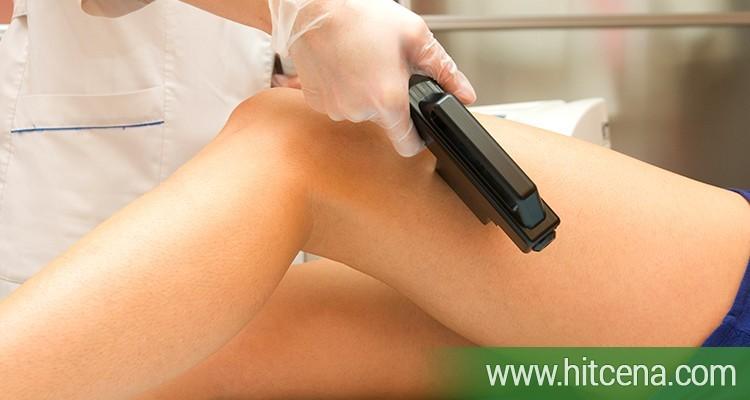 Trajna epilacija nogu shr aft laserom po hit ceni od 2900 rsd