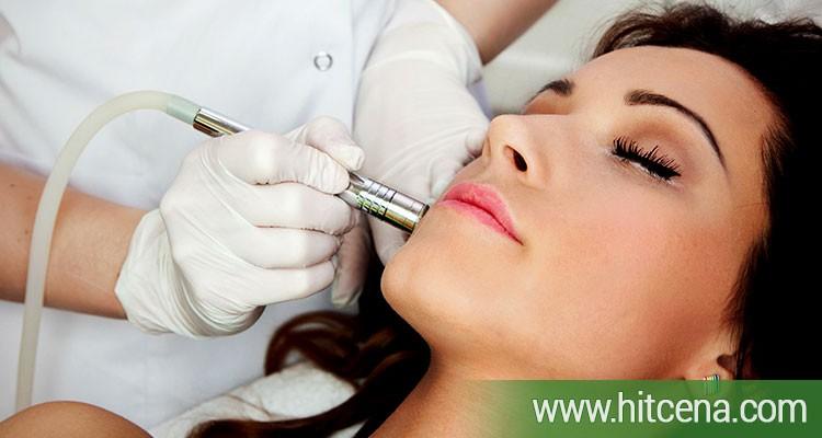 dijamantska mikrodermoabrazija lica, dijamantska mikrodermoabrazija lica popusti, tretman lica popusti, popusti hit cena