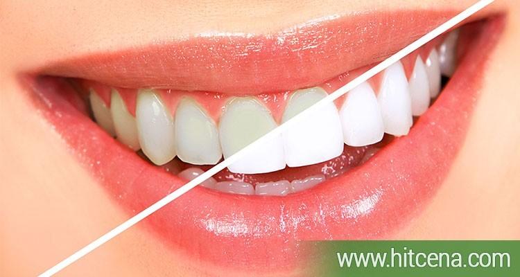 beljenje zuba, izbeljivanje zuba, beljenje zuba popusti, izbeljivanje zuba popusti, laser centar triniti