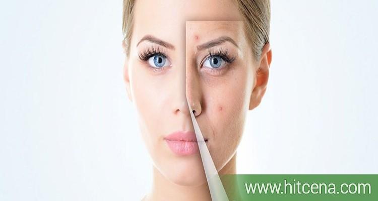 plasmaplen, ukljanjamke bradavica,  benigne izrasline, pojavljuju se na vratu, licu,  preponama, šakama, stopalima,