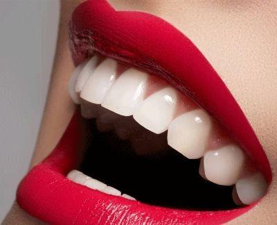 Laser,beljenje zuba,hitcena.com,hit cena,popusti