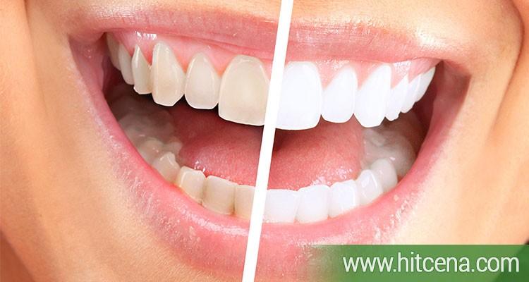 izbeljivanje zuba, izbeljivanje zuba popusti, hit cena popusti, zdravlje popusti