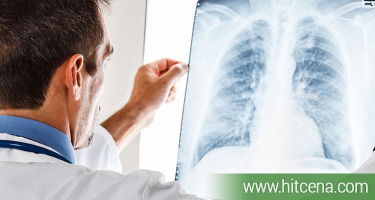 pregled pulmologa, pulmologija, pregled pulmologa popusti, pulmologija popusti, sm medic, sm medic popusti, zdravlje popusti