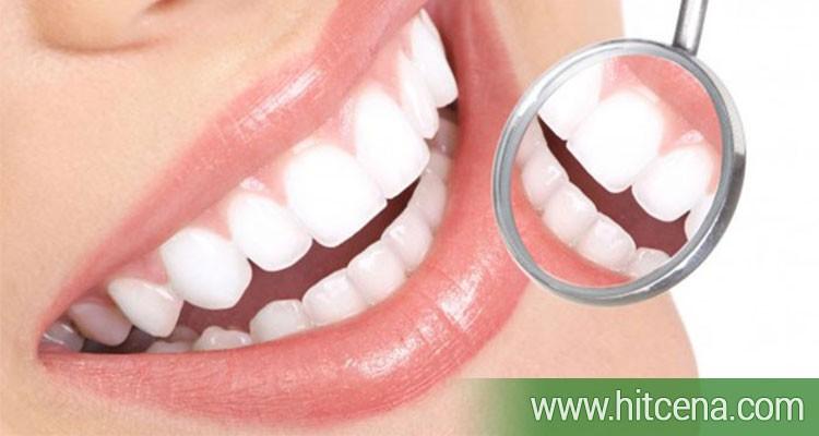 uklanje kamenca sa zuba, uklanjanje kamenca, poliranje zuba, hitcena.com, hitcena, popusti